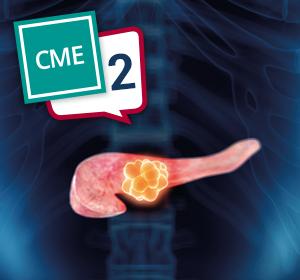 CME – Pankreaskarzinom – Teil 2: Sequenztherapie des metastasierten Pankreaskarzinoms