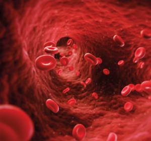 Behandlungsmöglichkeiten bei älteren Patienten mit AML