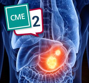 CME – Magenkarzinom – Teil 2: Sequenztherapie des Magenkarzinoms