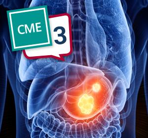 CME – Magenkarzinom – Teil 3: Zukünftige Strategien beim fortgeschrittenen oder metastasierten Magenkarzinom
