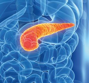 Pankreaskarzinom: Keimbahn und Tumor bewerten