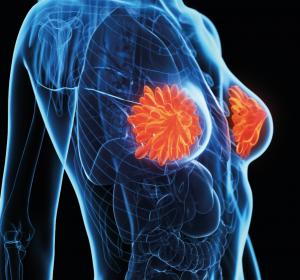 Mammakarzinom: Adjuvante HER2-Therapie ein weiterer Schritt zur Verbesserung der Prognose