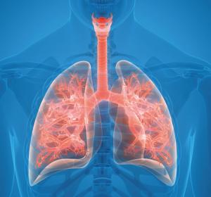 Atezolizumab und Alectinib können Überleben von NSCLC-Patienten verlängern