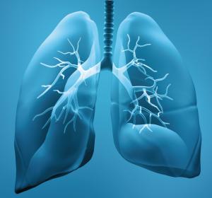 Krebsimmmuntherapie beim fortgeschrittenen nicht-kleinzelligen Lungenkarzinom: Wirksamkeit und Sicherheit nur mit dem Original-Zytostatikum belegt