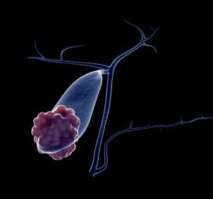 Karzinome der Gallenwege: Onkologische Standards und personalisierte Therapiemodalitäten