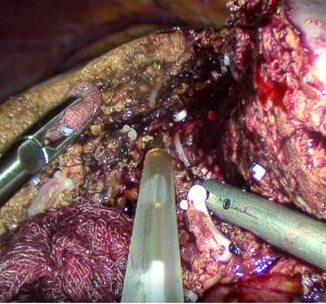 Cholangiokarzinom: Aktuelle chirurgische Strategien