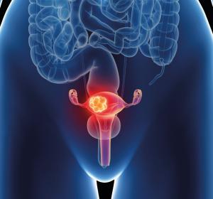 Zervixkarzinom: Minimal-invasive radikale Hysterektomie – welche aktuellen Daten gibt es?
