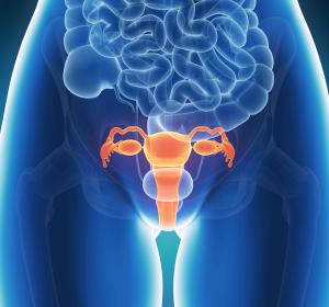 Neue Empfehlung der ESMO zur Behandlung des Zervixkarzinoms in frühen Stadien