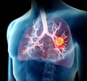 ALK+ NSCLC: Zulassungserweiterung für Brigatinib als Erstlinientherapie – systemisch und intrakraniell besonders wirksam