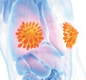 Mehr Supportive Care nötig: Krebsassoziierte Fatigue nach frühem Brustkrebs