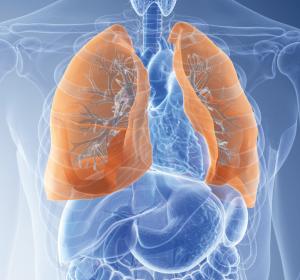 ROS1-Fusions-positives NSCLC und NTRK-Fusions-positive solide Tumoren: ASCO-Daten zu Entrectinib bestätigen CHMP-Empfehlung