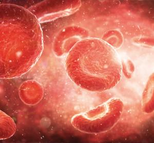 r/r DLBCL: Re-Therapie mit Axi-Cel nach Rezidiv