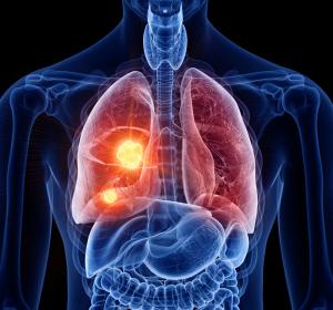 NSCLC: Chemo-/Immuntherapie nur mit den geprüften Präparaten sicher und wirksam