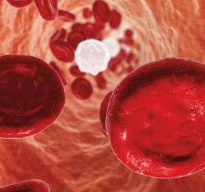 AML: Vorteile für ältere Patienten durch neue Substanzen
