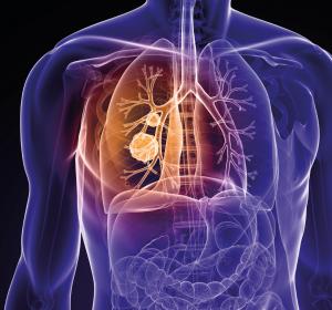 NSCLC: Verkürzte Chemotherapie + Kombinationstherapie Nivolumab/Ipilimumab ermöglicht Tumorkontrolle und Langzeitüberleben