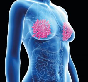 Neoadjuvante Therapie beim frühen HER2+ Mammakarzinom