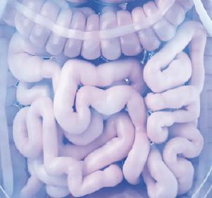 Die+Rolle+des+Mikrobioms+beim+Kolonkarzinom
