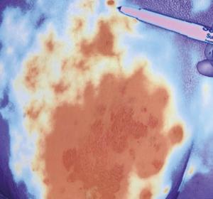 Angiosarkome – eine heterogene vaskuläre Neoplasie mit variabler klinischer Präsentation