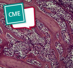 Systemische Leichtketten (AL)-Amyloidose – Diagnose und risikoadaptierte Therapie