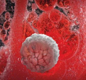 Die chronische lymphatische Leukämie: Aktuelle Therapiestandards