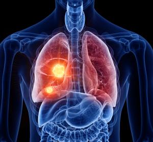 Metastasiertes+Lungenkarzinom%3A+Aktueller+Stand+der+medikament%C3%B6sen+Therapie
