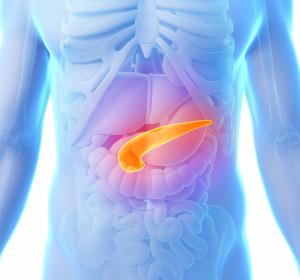 Chronische Pankreatitis als Risikofaktor für ein Pankreaskarzinom