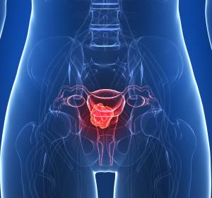 Chirurgische Therapie des Vulvakarzinoms