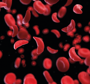 Sichelzellkrankheit: Verbesserung der Lebensqualität ist wichtigstes Therapieziel aus Sicht der Patienten