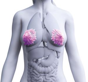 Zielgerichtete+Therapieoptionen+aus+der+Novartis-Pipeline+f%C3%BCr+Brust-+und+Lungenkrebs