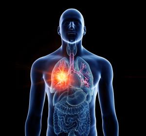 Strahlentherapie+des+kleinzelligen+Lungen%C2%ADkarzinoms+%E2%80%93+Indikation+und+Vertr%C3%A4glichkeit