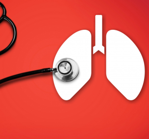 Lungenkarzinom%3A+L%C3%A4ngere+%C3%9Cberlebensdauer+durch+neue+Therapieverfahren