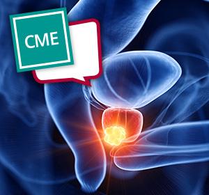 Nicht-metastasiertes+Prostatakarzinom%3A+Diagnostik+und+Therapie