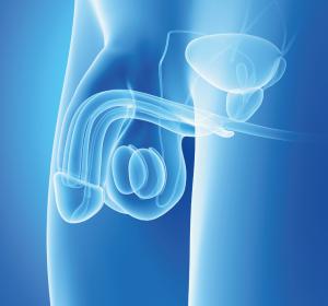 Versorgung+von+Patienten+mit+urogenitalen+Krebserkrankungen+durch+SARS-CoV-2-Pandemie+verschlechtert