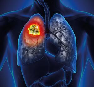 NSCLC%3A+Lebensqualit%C3%A4t+bleibt+unter+adjuvanter+Osimertinib-Therapie+erhalten
