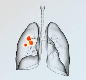 Fr%C3%BChzeitige+Krankheitskontrolle%3A+mNSCLC-Erstlinientherapie+mit+Nivolumab+%2B+Ipilimumab+%2B+begrenzte+Chemotherapie