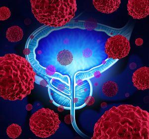 Fokale+Therapie+des+lokal+begrenzten+Prostatakarzinoms