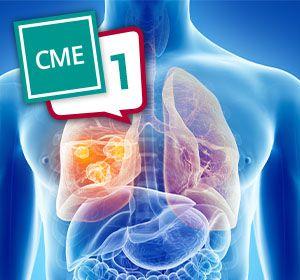 Update%3A+Checkpoint-Inhibitoren+in+der+Therapie+des+fortgeschrittenen+NSCLC+%E2%80%93+CME-Test+Teil+1