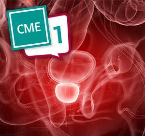 CRPC+mit+Mikrometastasen%3A+Definition+des+M0CRPC+muss+neu+%C3%BCberdacht+werden+%E2%80%93+CME-Test+Teil+1