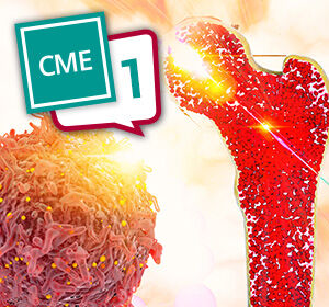 Update+zum+Osteosarkom+%E2%80%93+CME-Test+Teil+1
