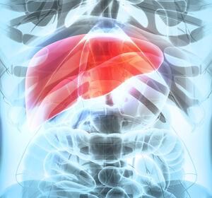 First-Line-Therapie+des+HCC%3A+Atezolizumab+%2B+Bevacizumab+%E2%80%93+neuer+in+den+Leitlinien+definierter+Therapiestandard