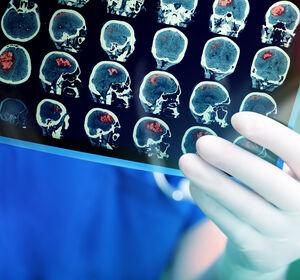 Lungenkrebs%3A+Neue+Perspektiven+bei+Hirnmetastasen%2C+neue+Targets