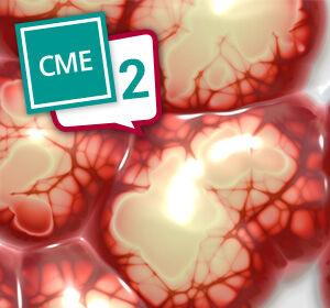 Intrakranielle+Wirksamkeit+der+medikament%C3%B6sen+Tumortherapie+bei+Hirnmetastasen+%E2%80%93+CME-Test+Teil+2