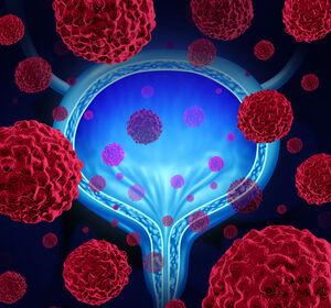 Neoadjuvante+Kombination+von+Cisplatin-Therapie+mit+Pembrolizumab+bei+muskelinvasivem+Blasenkarzinom+