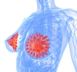 Fortgeschrittener%2Fmetastasierter+BC%3A+Der+gezielte+Einsatz+von+wirksamen+Therapien+in+der+Sequenz