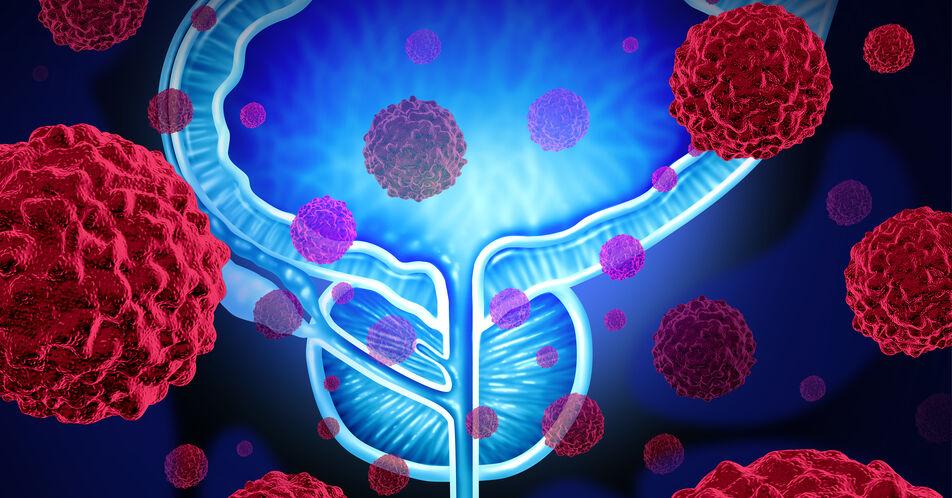Androgendeprivation%3A+Behandlung+des+Prostatakarzinoms