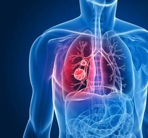 NSCLC: PD-L-1-Inhibition mit Atezolizumab bringt Überlebensvorteil