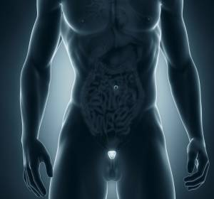 Metastasiertes Prostatakarzinom: Chemotherapie-Indikation initial prüfen