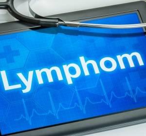 Obinutuzumab zur Therapie von indolenten Lymphomen