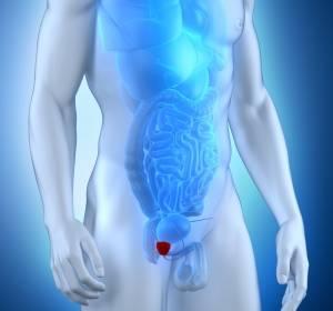 Ossär metastasiertes Prostatakarzinom: Osteoprotektion früh initiieren
