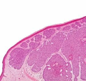Fortschritte in der systemischen Therapie von Hautkrebs